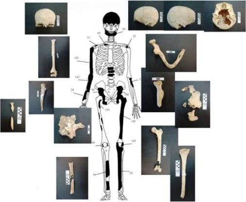 2 ΥΠΠΟΑ: Μελέτη Σκελετικών Καταλοίπων Ταφικού Μνημείου, Λόφου Καστά