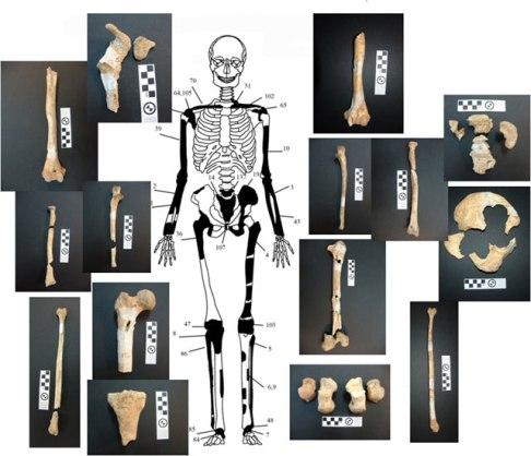 4 ΥΠΠΟΑ: Μελέτη Σκελετικών Καταλοίπων Ταφικού Μνημείου, Λόφου Καστά