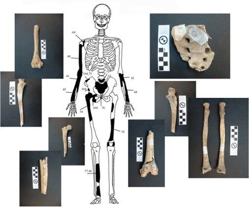 6 ΥΠΠΟΑ: Μελέτη Σκελετικών Καταλοίπων Ταφικού Μνημείου, Λόφου Καστά