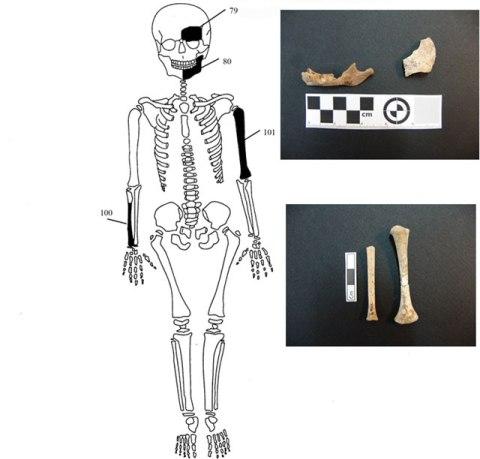 8 ΥΠΠΟΑ: Μελέτη Σκελετικών Καταλοίπων Ταφικού Μνημείου, Λόφου Καστά